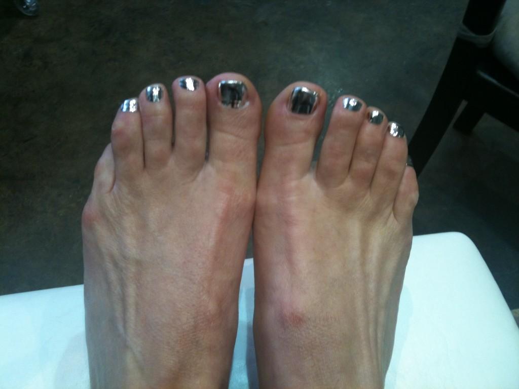 My toenails...