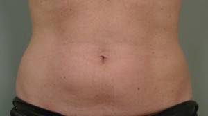 Tummy shot - front view, 5.11.'12